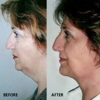 Anti ageing beauty treatment: Smartlipo