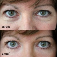 Anti ageing beauty treatment: eye bags