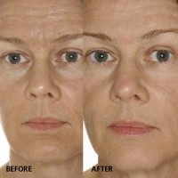 Anti ageing beauty treatment: slack skin