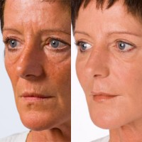 Non surgical fillers