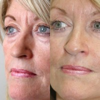 No surgery facelift