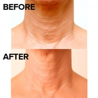 Restylane Vital Light treatment