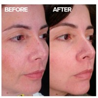 Skin discolouration