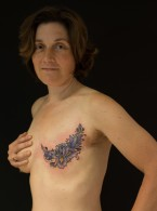 Breast Cancer Survivors Bare Their Scars