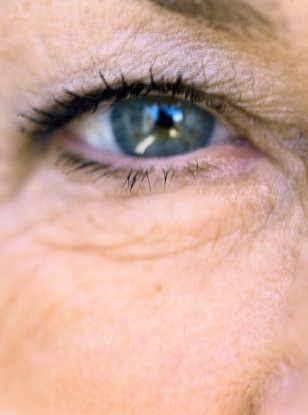 New Test Could Spot Glaucoma A Decade Before Symptoms Appear