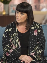 Dawn French Reveals Shocking Racist Abuse She's Suffered
